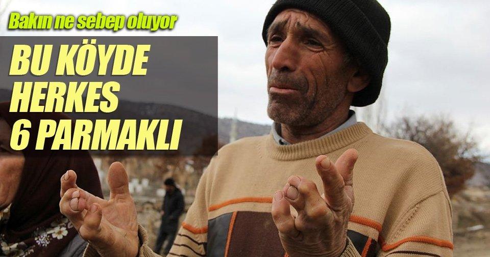 6 parmaklı insanların köyü