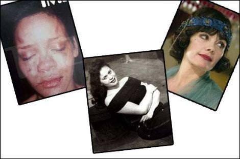Sevgilisinden şiddet gören ünlüler