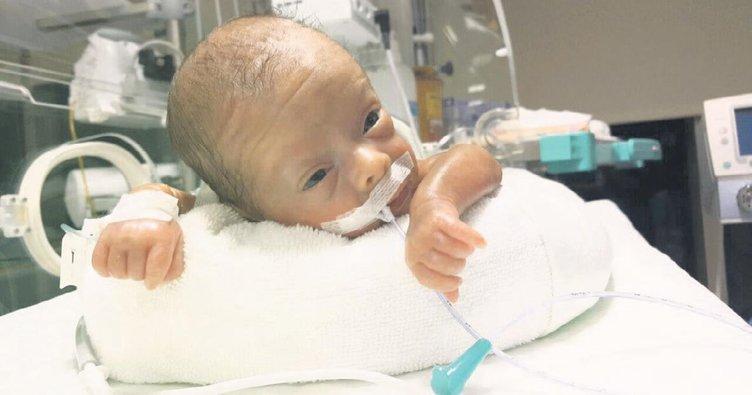600 gram doğdu hayata tutundu