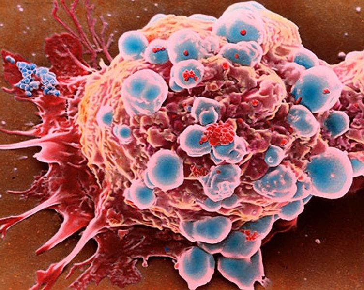 O kanser türünde en büyük risk…