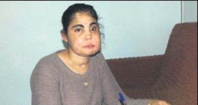 Türkiye'nin ilk nakil yüzlü kadını öldü