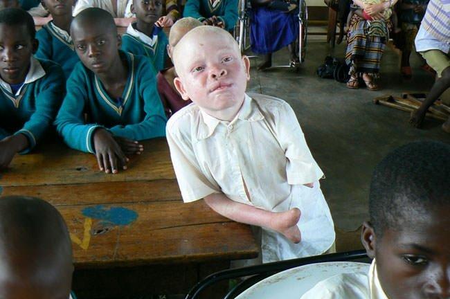 Tanzanya'da albino vakaları