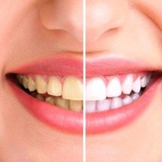Dişlerini beyazlatmak isteyenlere püf nokta