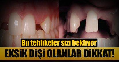 Eksik dişleri olanlar dikkat! Bu tehlikeler sizi bekliyor