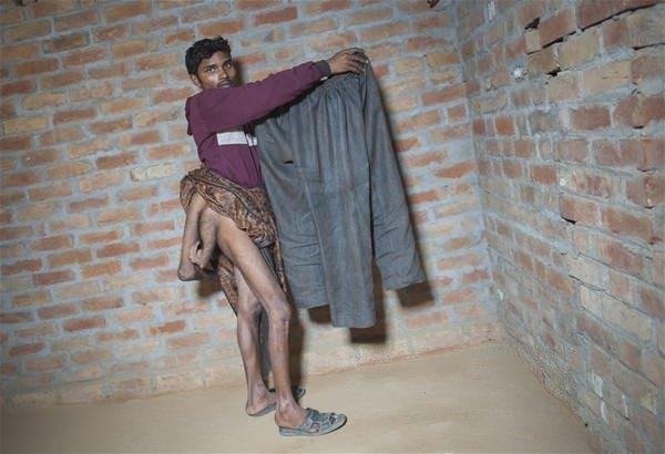 Dört bacaklı gencin dramı