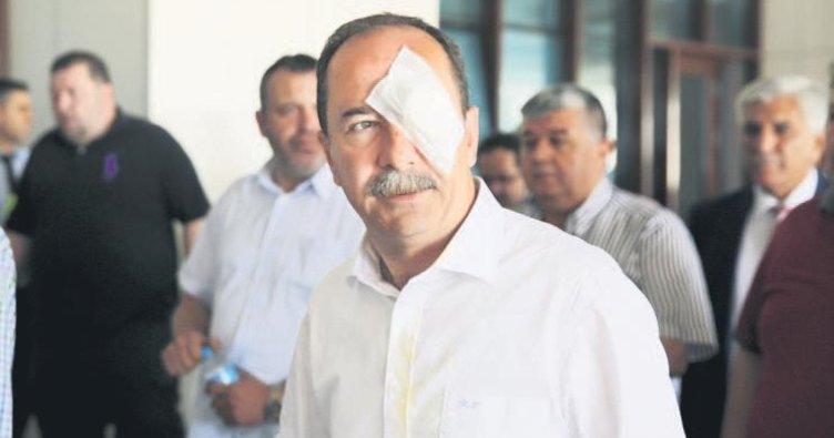 Belediye başkanına yumurtalı yumruklu saldırı