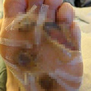 Çıplak ayakla duş almanın bedeli ağır oldu