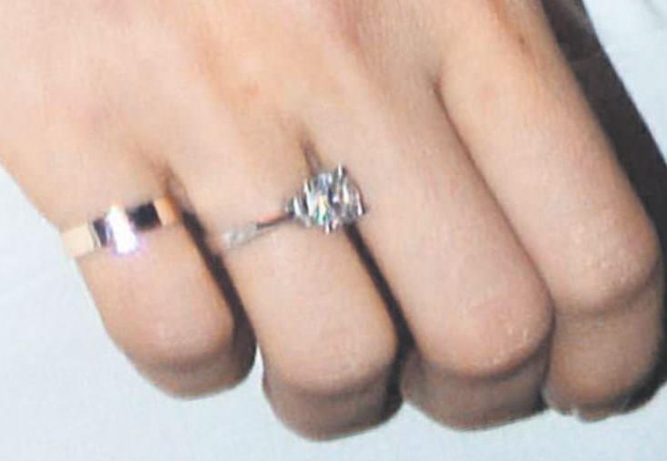 Sinem Kobal'ın 'evlilik yüzüğü' göründü!