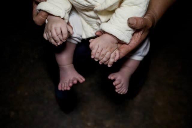 25 kişilik ailenin toplamda 600 parmağı var!.