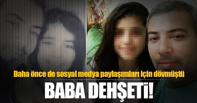 Baba iftar sonrası cinnet getirdi, 17 yaşındaki kızını vurdu