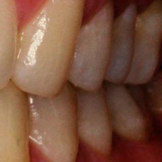 Gülerken diş etleriniz görünüyorsa dikkat