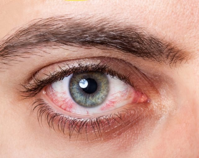 Gözlerinizde kırmızılık varsa…
