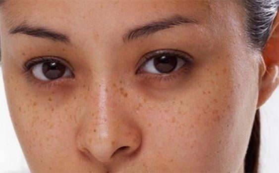 Göz altı morluklarının gizli nedenleri