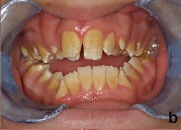 Diş bozukluğu