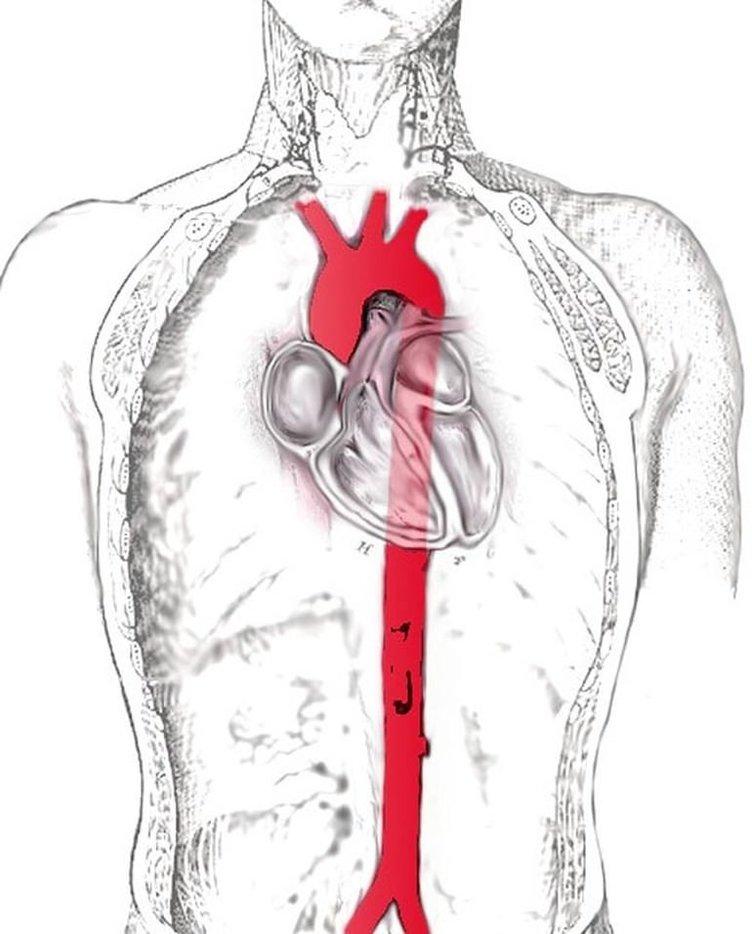 Aort damarı neden yırtılır?