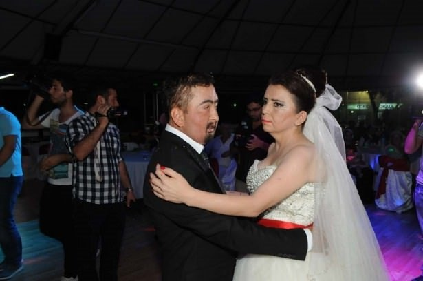 Yüz nakli olan Turan evlendi