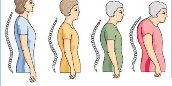 Menopozda kemik kaybına karşı yürüyün!
