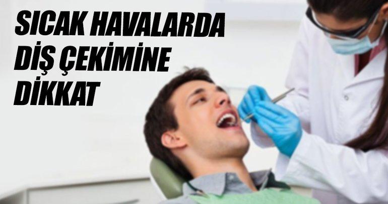 Sıcak havalarda diş çekimine dikkat