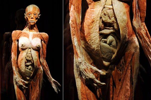 Body Worlds