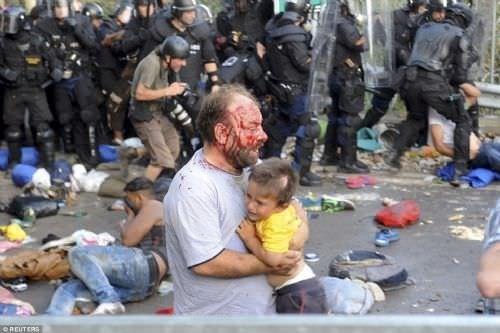 Mülteci çocuğun gözünü çıkarttılar