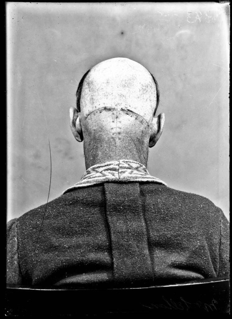 Bir beyin cerrahının albümü