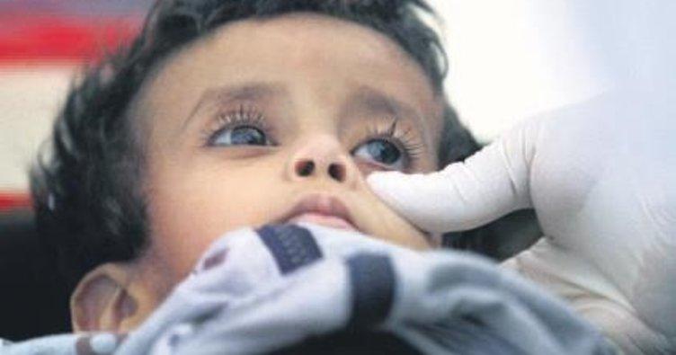 Yemen'de 859 kişi koleradan öldü