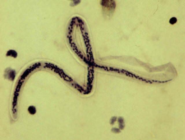 Gözdeki parazite dikkat