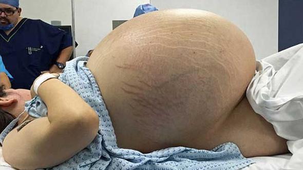 Hamile olduğunu düşünüyordu, doktora gittiğinde büyük şok yaşadı!