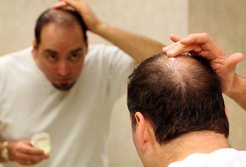 Dökülen saçların yeniden çıkması için…