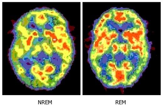 Birbuçuk kiloluk sır küpü: beynimiz hakkında şaşırtıcı 10 gerçek
