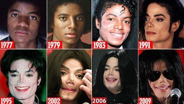 Michael Jackson'ın şok görüntüsü
