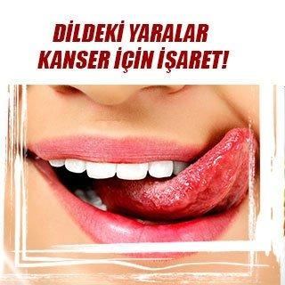 Dildeki yaralar kanser için işaret
