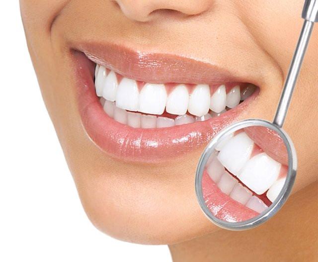 Diş beyazlatma önerileri