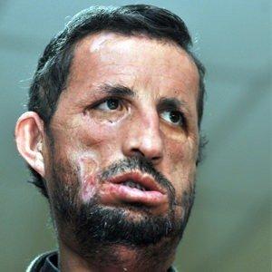 İlk yüz nakilli Uğur Acar hastaneye kaldırıldı