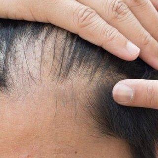 DHI saç ekimi hakkında bilinmesi gerekenler!