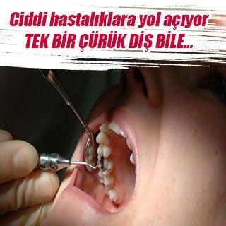 Tek bir çürük diş bile…