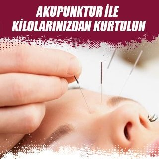 Akupunktur ile kilolarınızdan kurtulun