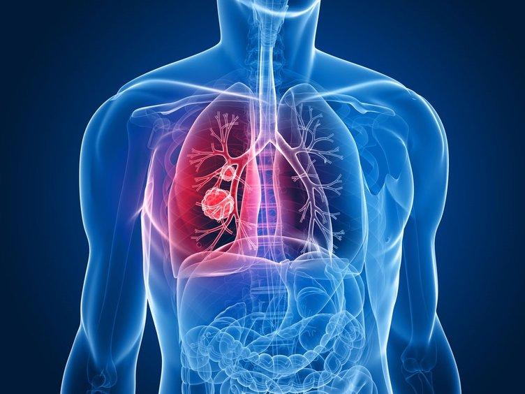 Akciğerlerdeki o sorun için…