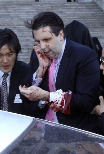 ABD'nin Seul Büyükelçisi'ne usturalı saldırı