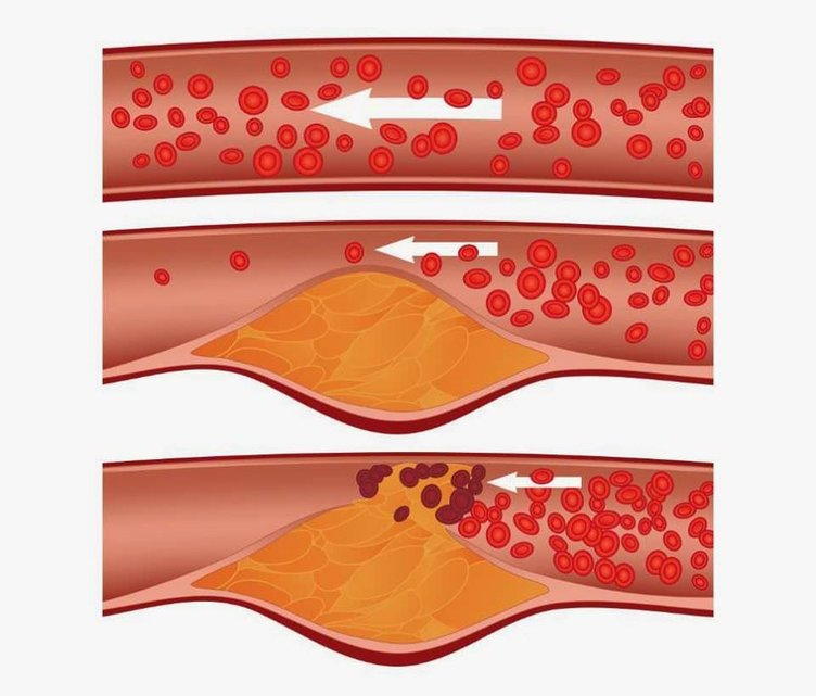 Yüksek kolesterol hayatı tehdit ediyor