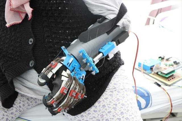 Bu robot elinde felç olan hastalara umut olacak!