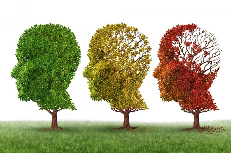 Bu araştırma Alzheimer hastalarına umut oldu