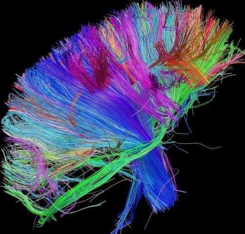 İnsan beyninin en detaylı görüntüleri