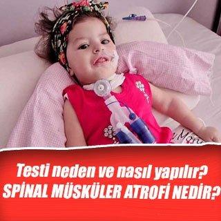 SMA( Spinal Müsküler Atrofi) nedir? SMA testi neden ve nasıl yapılır? - İşte cevabı