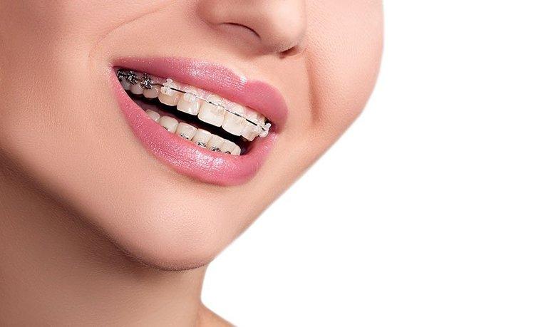 Diş teli tedavisi ile ilgili doğru bilinen 5 yanlış