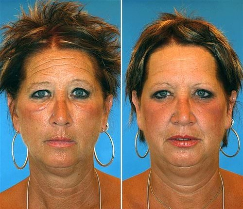 Sizce bu ikizlerden hangisi sigara içiyor?