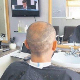 Yanlış saç ekimine tazminat davası