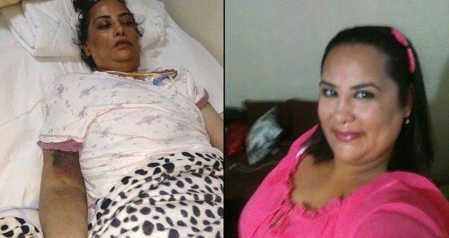 Mide küçültme ameliyatının ardından felç olan kadın öldü