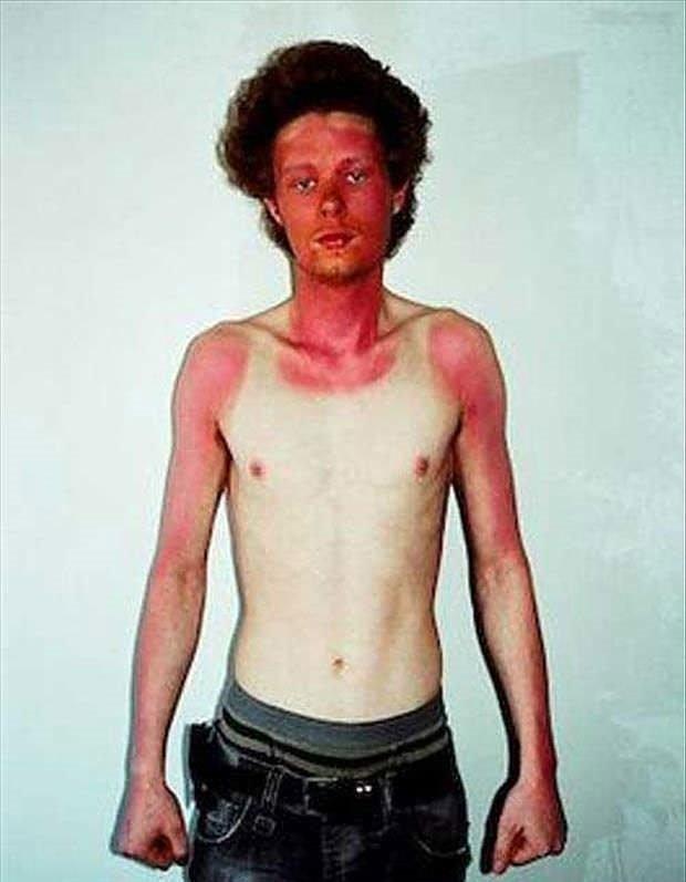 Güneş yanığı kurbanları
