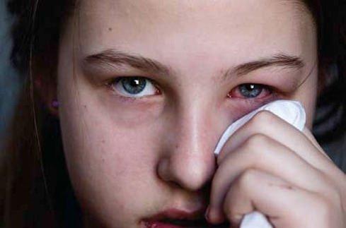 Zor teşhis ediliyor akciğerlerde hasara yol açıyor